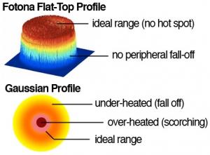 Fotona Flat Top_vs_Gaussian Beam