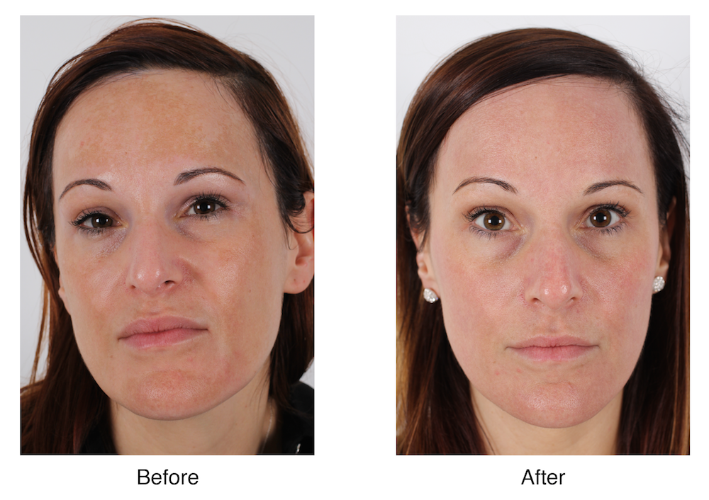 Melissa Xerri - Before and After-01